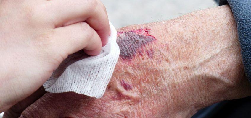 ¿Cómo saber si una herida se ha infectado?